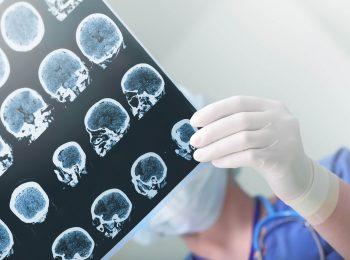 Isquemia cerebral: o que é necessário o estudante saber?