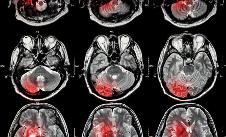 O que um estudante de medicina precisa saber sobre doenças cerebrovasculares